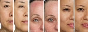 before and after Jouve Skincare Dark Spot Serum and Brightening Cream