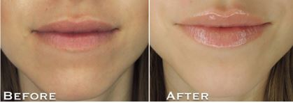 grandlips-before-and-after
