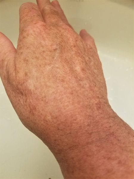 before halo laser treatment